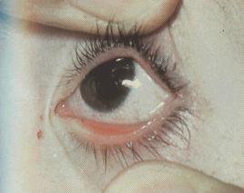 Аденовирусная инфекция инъекция