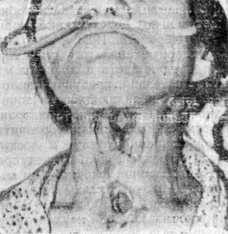 Больная П-ва, состояние после горизонтальной резекции гортани и формирования стойкой бесканюльной трахеостомы