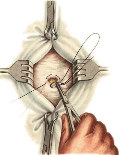 удалению паховой грыжи в киеве