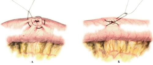 Шов тонкой кишки (enterorraphia) - Операции на тонкой кишке ...