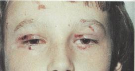 Причины боли левого яичника
