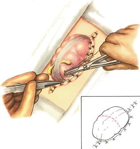 Болезнь пейрони без операции
