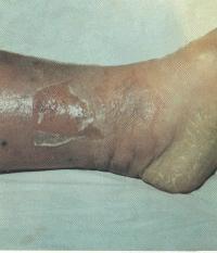 Рожа - Дополнительные иллюстрации - Инфекционные болезни у детей ...