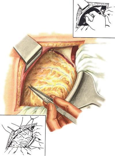 Кальба операция