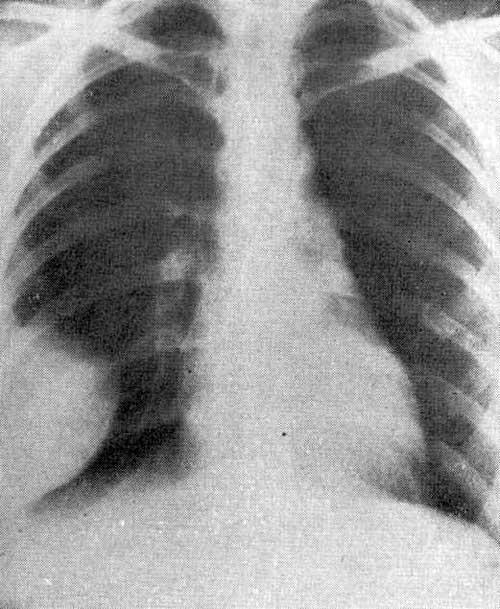 При рентгенологическом исследовании справа спереди от IV ребра до Рентг