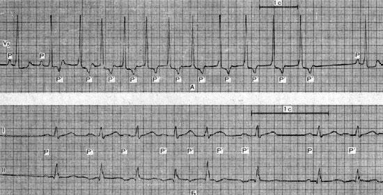 Ускоренный наджелудочковый ритм (клиническая картина ...