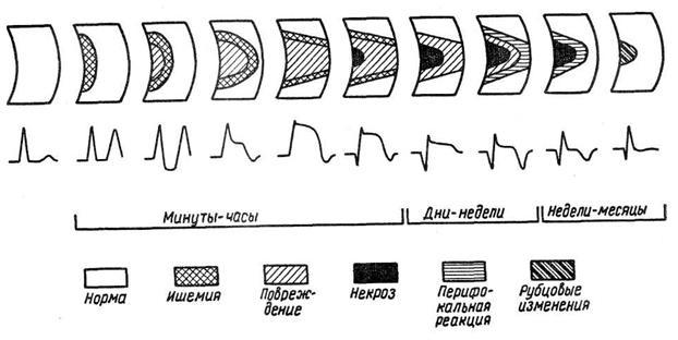 Динамика экг на различных стадиях