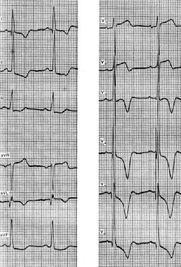 Экг при гипертрофической кардиомиопатии