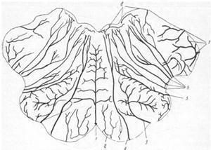 Схема распределения крупных артериальных сосудов внутри продолговатого мозга на уровне верхней трети оливы (по Бонне).