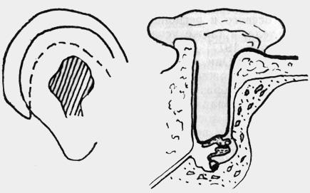 Тромбогеморрагии