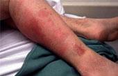 Как лечатся инфекции, вызываемые стрептококком группы A?