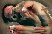 Причины возникновения болезни суставов и позвоночника