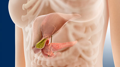 Что такое некротический панкреатит?