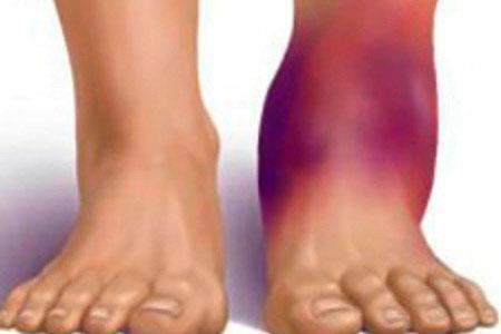 Что такое гемартроз сустава и как предотвратить патологию