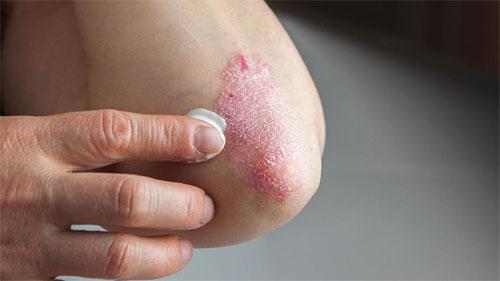Насколько эффективен инфликсимаб для лечения псориаза?