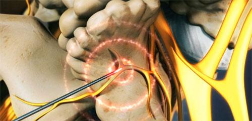 Что такое нервная абляция?