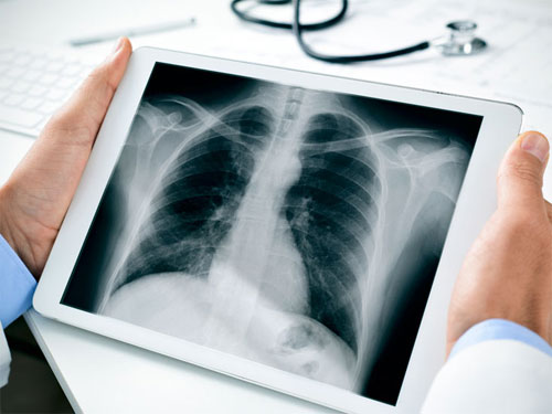 Рентген: правила проведения и стандарты