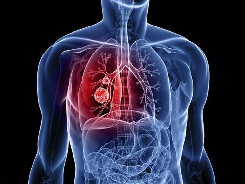 Лечение рака легких 4 стадии: невозможное возможно