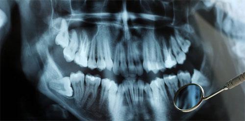 Рентген в стоматологии: значимость и помощь