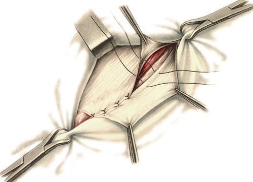 пластика пахового канала по способу а в мартынова хирургическая