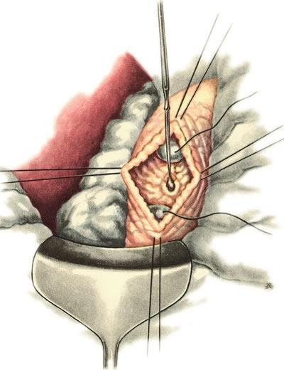 Рассечение слизистой кишки и интрамуральной части общего желчного протока
