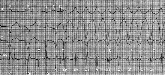 Пароксизмальная желудочковая тахикардия (механизм аритмии)