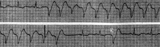 Пароксизмальная желудочковая тахикардия (электрокардиографические критерии диагностики)