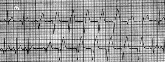 Диагностика атриовентрикулярной диссоциации. Идиовентрикулярный ритм сердца