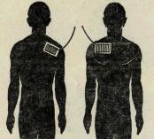 Электртофорез плечевого сустава лечение облепихой шротом бурсита суставов