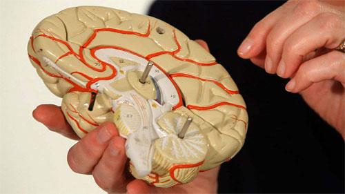 Как лечится эпилепсия?