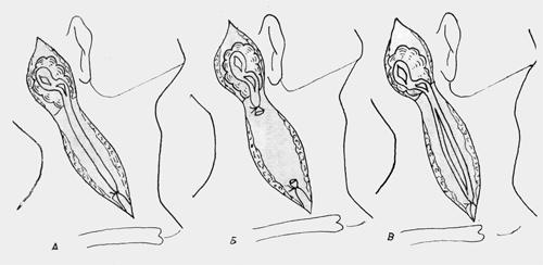 Рекомендации А. Г. Шантурова по манипуляциям на вене и ее ветвях