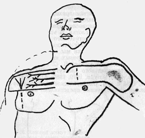 Дельто-пекторальный лоскут