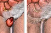 Каковы симптомы послеоперационной грыжи?