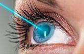 Показания к лазерной коррекции зрения