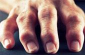 Местное лечение артроза