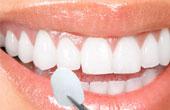 Зубы: здоровье и эстэтика