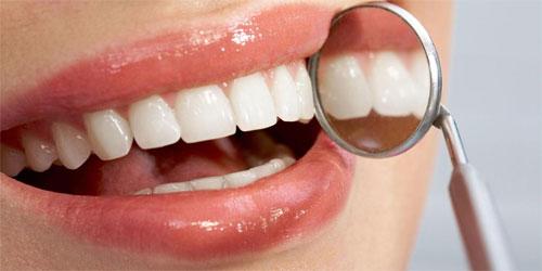 Эстетические проблемы зубов