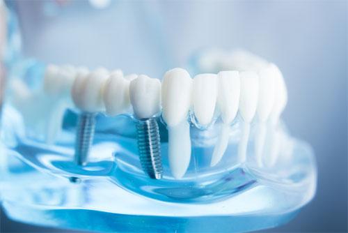 Материалы для изготовления зубных протезов