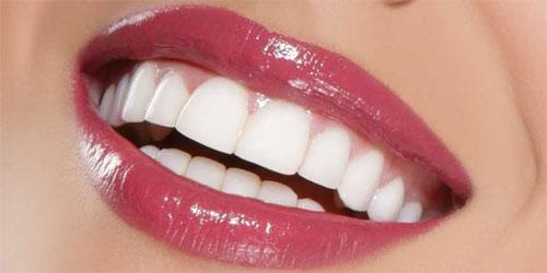 Как сделать голливудскую улыбку?