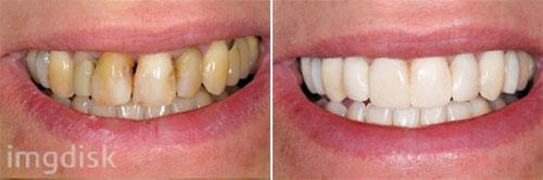 Кариес — главный враг зубов: не забывайте про стоматологов