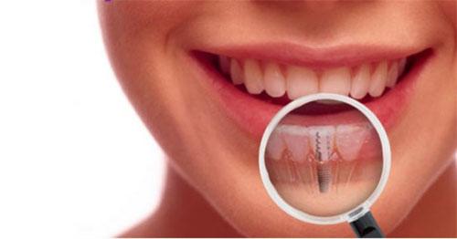 Достоинства зубной имплантации