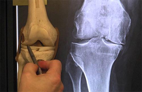 Боли в коленях после бега причины лечение и профилактика