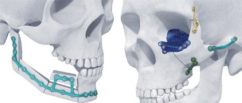 Челюстно-лицевая имплантология: операции и показания