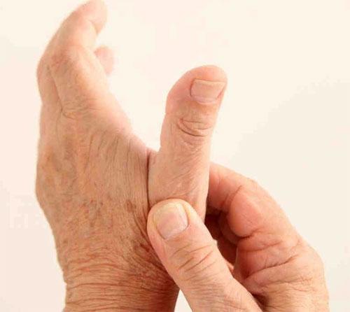 Остеоартроз и образ жизни
