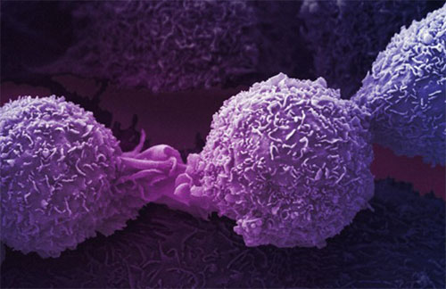 История борьбы с онкологией