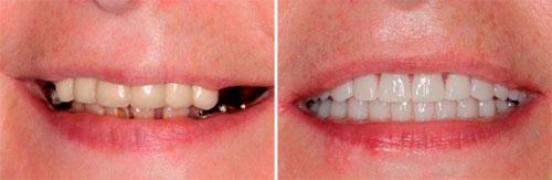 Протезирование зубов в Китае: стоимость и отзывы пациентов