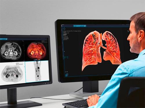 Диагностика компьютерной томографией