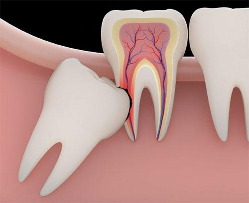 Патологии развития и роста зуба мудрости