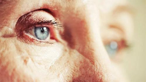 Восемь способов снизить риск развития глаукомы