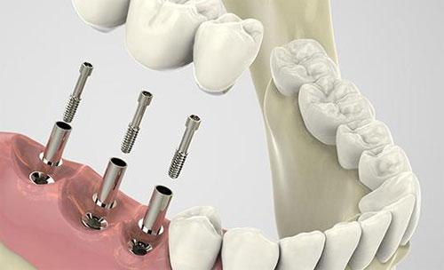 Биоимпланты стоматологические